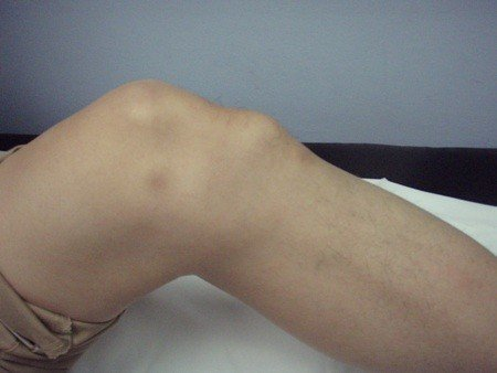 La sindrome di Osgood Schlatter 002 spine center