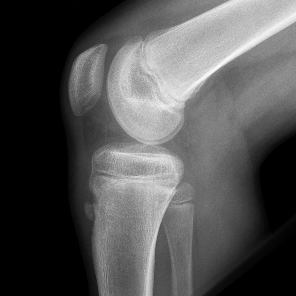 La sindrome di Osgood Schlatter 003 spine center