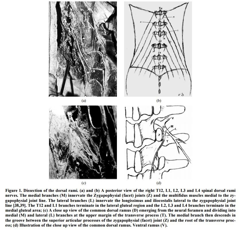 La Sindrome Del Ramo Dorsale nel mal di schiena