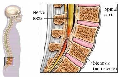 stenosi del canale lombare e prostata infiammata